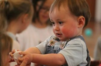 Особенности костно-мышечной системы у детей с синдромом Дауна