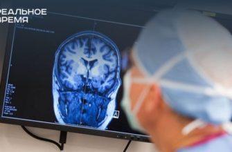 Эпилепсия: как жить с этим, что можно и что нельзя