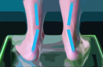 Как исправить Х-образную деформацию ног у ребенка - НЦЗД