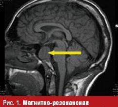 Качественная диагностика и лечение аденомы (опухоли) гипофиза